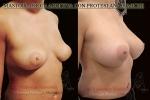 02-aumento del seno protesi anatomiche2.jpg