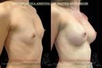 17-protesi anatomiche2.jpg